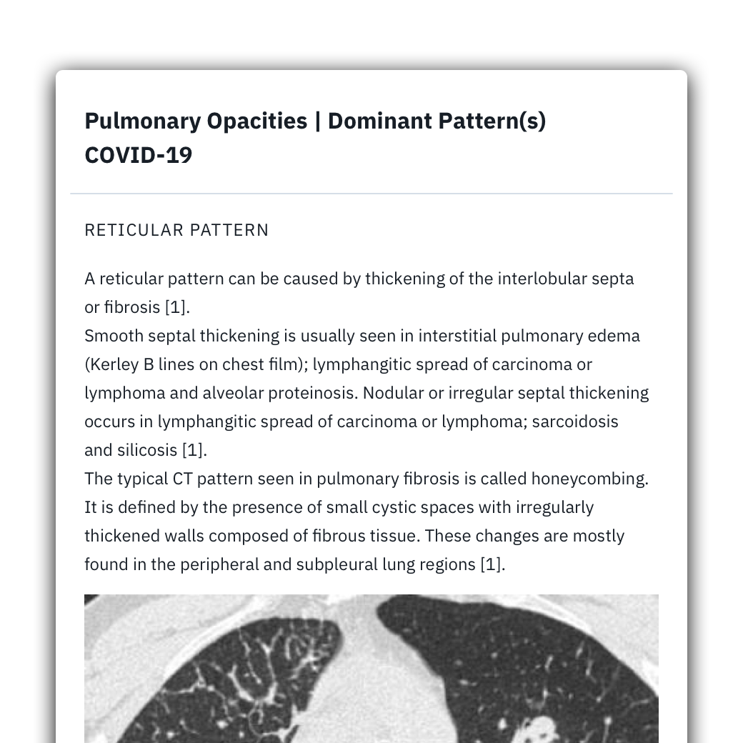 preview of the curated textbook on pulmonary opacities