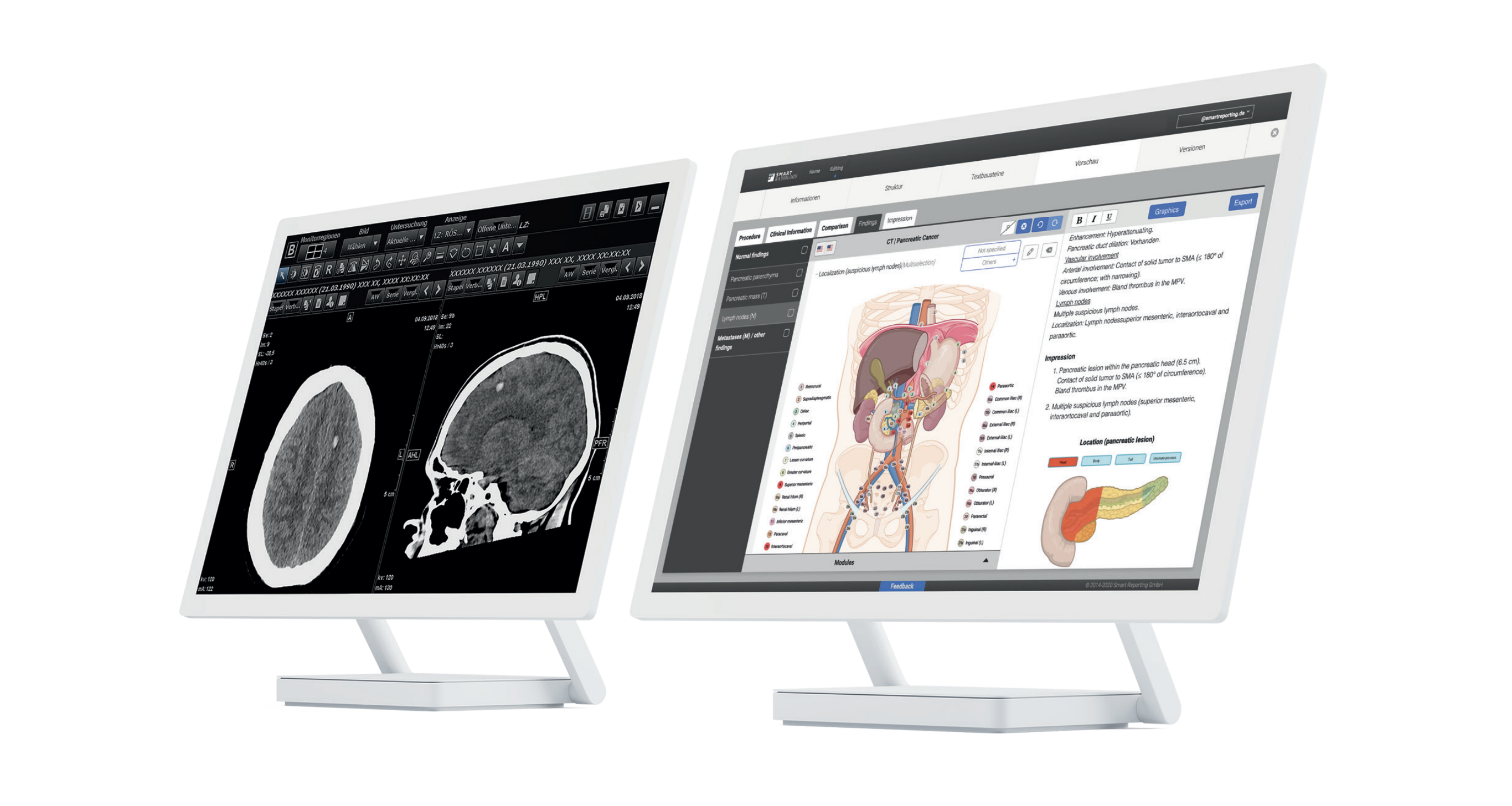 2 Screens. One Screen with MRT Image of the head, other screen with sketch elements of abdomen