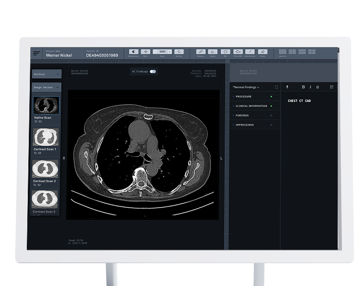 Screenshot of a Chest CT Image