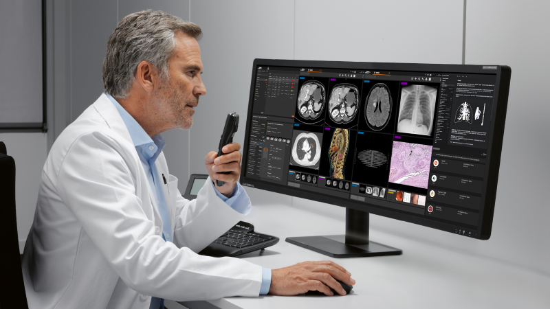 Syngo Carbon imaging and reporting software from Siemens Healthineers integrates intelligent reports from Smart Reporting